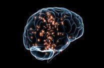 Estimulação cerebral profunda melhora recuperação após AVC