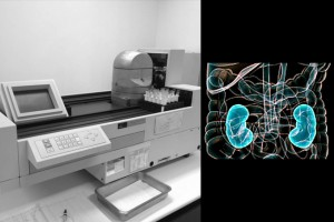 Equipamento usado para dosar a radiação nas amostras de sangue dos pacientes após a aplicação do radiofármaco Cr51-EDTA (foto: ivulgação); à direita, pacientes que tiveram a reposição hormonal suspensa durante um tratamento com radioiodo apresentaram prejuízo de 18% na taxa de filtração glomerular (imagem: NIH).