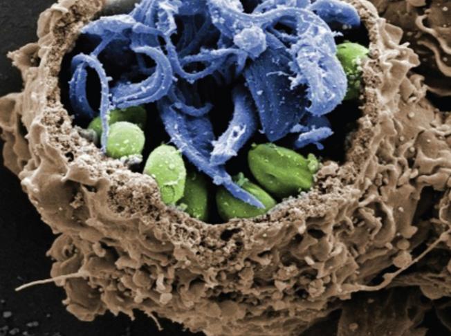 Fotografias microscópicas de infecções são registradas pela primeira vez por pesquisadores da Unifesp e ilustram capas de revistas científicas. Foto: divulgação / Fapesp