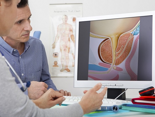 Conheça a doença mais comum na próstata: a hiperplasia prostática