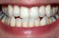 Software analisa perda óssea provocada por problemas no contato entre dentes