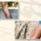 Varizes nas pernas: causas e riscos